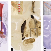 IMN ; Erwan Bézard ; Parkinson's disease ; Transgenesis ; Dyskinesia ; Extracellular space ; synuclein ; Dopamine