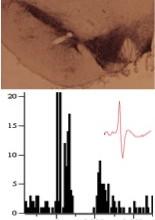 Benazzouz ; De Deurwaerdère ; Maladie de Parkinson ; Neurophysiologie ; Monoamine ; Noyau sous-thalamique ; Microdialyse ; Noyaux gris centraux ; Troubles moteurs et non moteurs