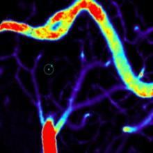 Bruno Bontempi ; Consolidation de la mémoire ; Vaisseaux cérébraux ; Plasticité cérébrale ; Maladie d'Alzheimer ; Récepteurs NMDA ; Réseaux neuronaux