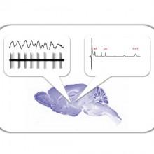 Benazzouz ; De Deurwaerdère ; Parkinson's disease ; Neurophysiology ; Monoamine ; Subthalamic nucleus ; Neurochemistry ; Basal ganglia ; Motors and non-motor deficits