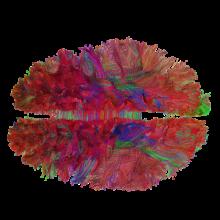Tzourio-Mazoyer ; Hemispheric specialization ; Language & spatial attention ; Motor representations ; Statistical neuroanatomy ; Intrinsic connectivity ; White matter connectivity